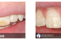 Stained Teeth - Before and After Cosmetic Dentistry Photos from Door County Dental Care