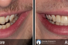 Uneven Teeth - Before and After Cosmetic Dentistry Photos from Door County Dental Care