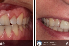 Rotting Teeth - Before and After Cosmetic Dentistry Photos from Door County Dental Care