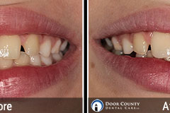 Chipped Tooth - Before and After Cosmetic Dentistry Photos from Door County Dental Care