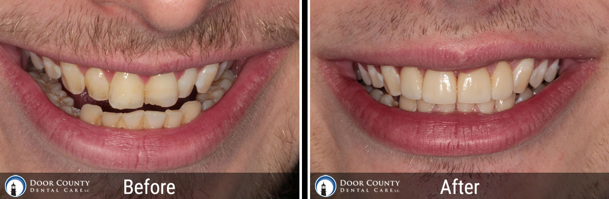 Cosmetic Dentistry Before and After Photos from Door County