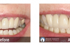 Before and After Cosmetic Dentistry Photos from Door County Dental Care