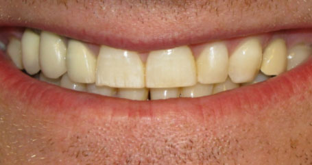Flouride Treatments at Door County Dental Care