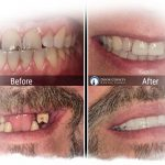 Cosmetic Dentistry at Door County Dental Care in Sturgeon Bay, WI