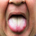 Tongue Brushing and Cleaning Article from Door County Dental Care