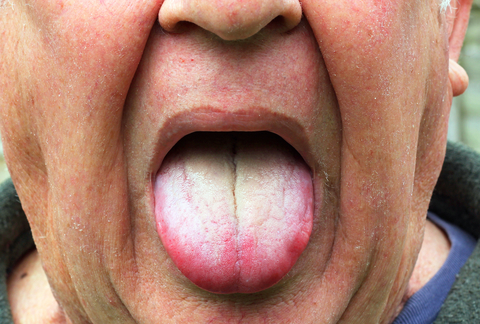 The Importance Of Cleaning And Brushing Your Tongue From