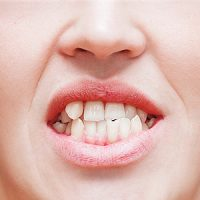 Your Teen's Teeth May Not Be Ready for Veneers