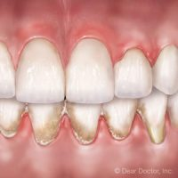 5 Warning Signs You Have Gum Disease