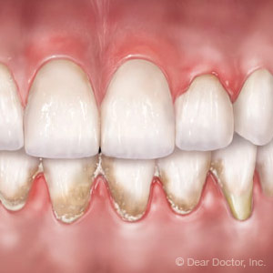Warning Signs of Gum Disease from Door County Dental Care