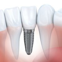 With Proper Management, Dental Implants can be a Reality for Diabetics