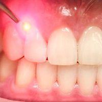 Is Laser Treatment a Good Option for Controlling Gum Disease?