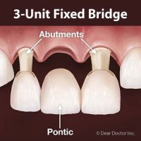 A Traditional Bridge Might be the Right Solution for Your Missing Teeth
