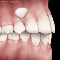 Coaxing Impacted Teeth to the Right Position can Improve Your Smile