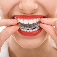Keep Your New Straightened Smile Straight with an Orthodontic Retainer