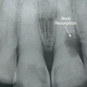 Root Resorption x-ray